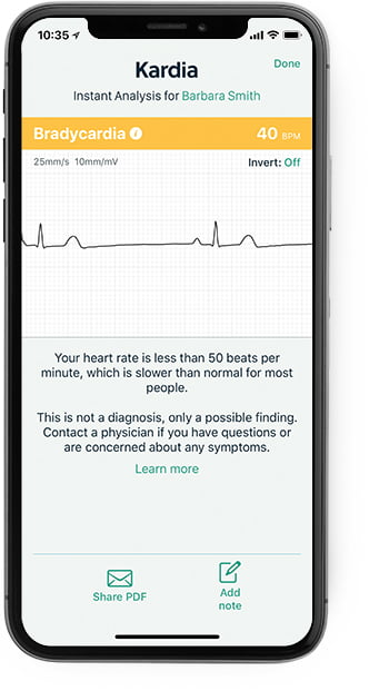 iPhone showing the Kardia app with a bradycardia result